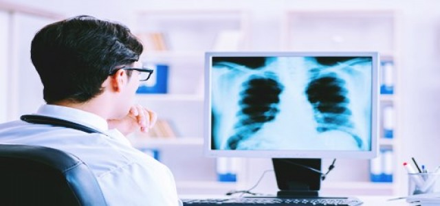 UK university uses graphene to develop lung cancer detection device